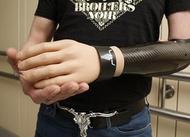 Foto da mão biônica criada