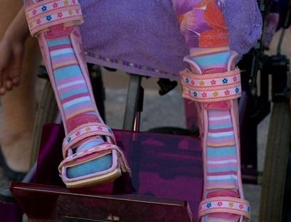Foto de uma das próteses entregues pelo Crefes