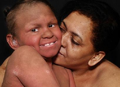 Foto exposta na Mostra de mãe e filho com deficiência